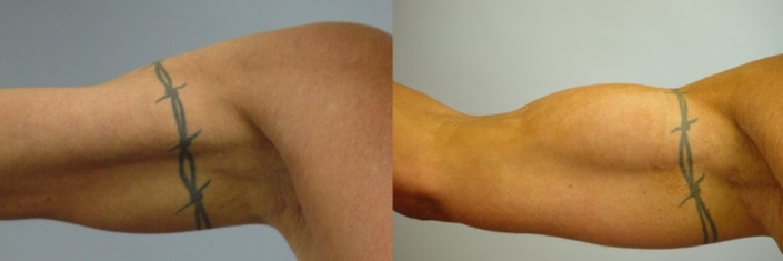 Biceps Implants - Before and After