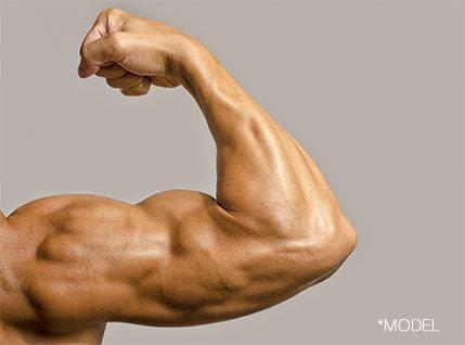 Biceps Implants for Men