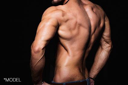Triceps Implants