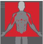 Male Bicep Implants