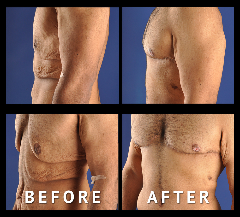 Post Bariatric Surgery for Men   Male Plastic Surgery, Los Angeles