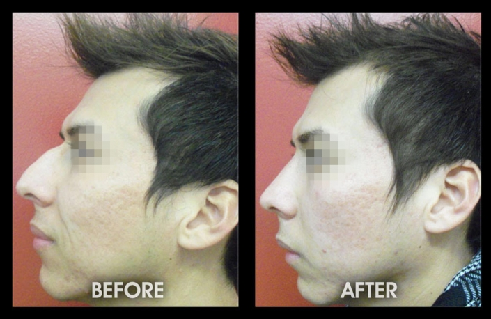 Example of a successful, closed rhinoplasty (nose job) procedure by Dr. Chugay